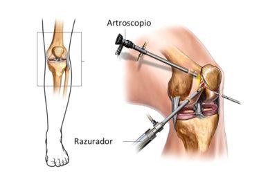 Artroscopia: ¿Qué es? ¿Cuáles son sus beneficios?